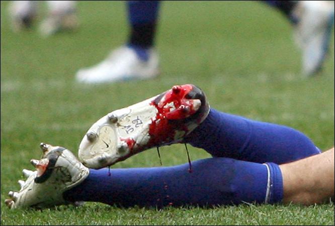 videos de lesiones de futbolistas: